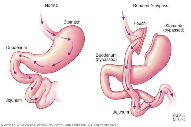 ניתוח מעקף קיבה - www.miok.co.il